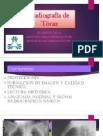 Rx de Tórax.pptx