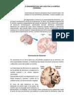 Enfermedades Degenerativas Que Afectan La Corteza Cerebral