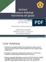 Karsinoma Sel Ginjal Referat
