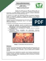 TI. Endocarditis Bacteriana.