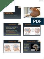 Deteksi Dini Hidrocephalus pada Orang Dewasa dan Anak.pdf