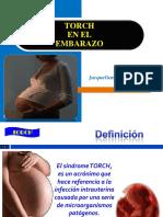 torchyembarazo-120818224931-phpapp02.pdf