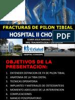 PILON TIBIAL.pptx