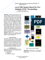 Tissue Detection in MRI Images Based On New Modified Multiple OTSU Thresholding