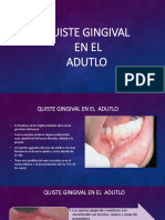 Quiste Gingival