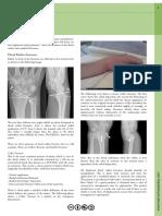Wrist Fractures
