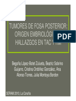 Tumores de Fosa Posterior