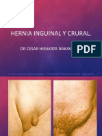 Hernias Inguinales 2017a