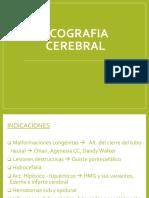 Eco Cerebro
