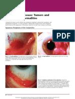 Conjunctival Disease