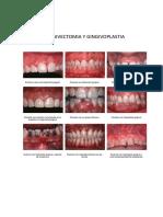 314548203-Gingivectomia-y-Gingivoplastia-Gigantografia.docx
