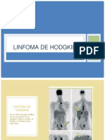 linfomadehodgkin-