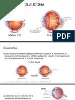OFTALMOLOGÍA-GLAUCOMA SECUNDARIOS-RGCY.pptx
