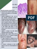 Cuadro Clinico Carcinoma Epidermoide