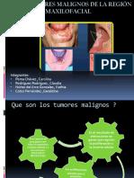 Tumores Malignos de La Región