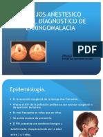 Diagnostico de Laringomalacia