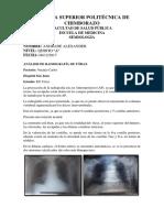 Análisis de Radiografía