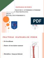 Fractura Diafisaria de Femur