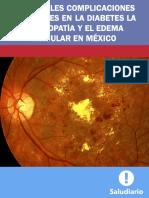 Retinopatia Edema Macular(1)