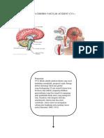 Skema Cerebro Vascular Accident