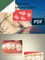 ceramicinlaysandonlays-140304103943-phpapp01.pdf
