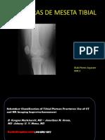 Fracturas de meseta tibial.pdf