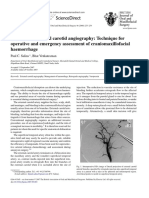 External Carotid Angiography