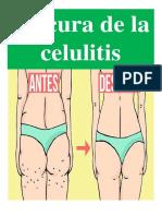 La Cura de La Celulitis