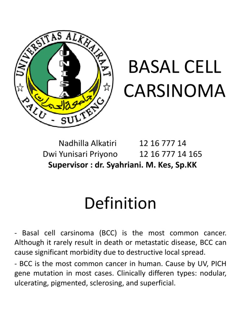 basal cell carsinoma carcinoma cutaneous conditions