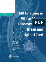 MR Imaging in White Matter Diseases of the Brain and Spinal # Gliosis