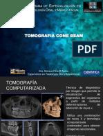 Tomografia Cone Beam Ilae