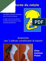04- Fractures Du Cotyle