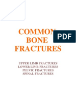 Common Bone Fractures