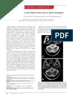 Progressive Ataxia With Palatal Tremor Due to Gluten Sensitivity (2012)