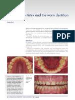 worn dentition and direct & indirect composite restoration.pdf