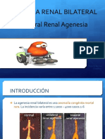 Agenesia Renal Bilateral Eq 1