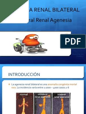 agenesia renal gpc