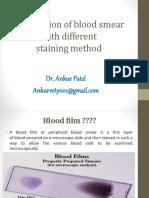 Bloodsmearstaining 150621170431 Lva1 App6891