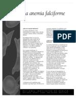 Anemia Falsciforme
