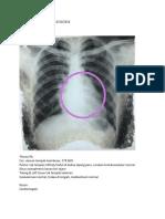 4. Sortir Soal Ujian Radiologi Dea - 13 10 2016
