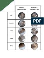 Vista Microscopica de Los Tipos de Carne
