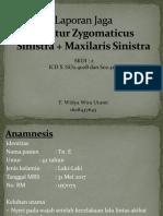 Lapja Fraktur Zygomaticus