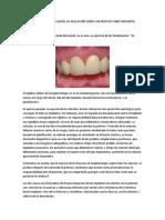 Articulos Sobre Oclusion en Implantologia