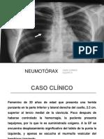 Caso Clinico Neumotorax