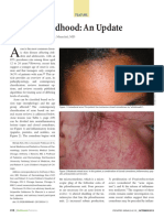 Acne in Childhood Wendy Kim, Do; And Anthony j. Mancini, Md