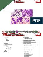 CASE 4 Acute Myeloid Anemia