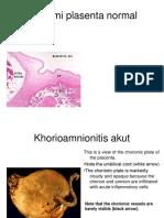 Patologi Plasenta 2015
