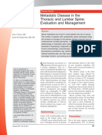 Metastatic Disease in the Thoracic and Lumbar Spine