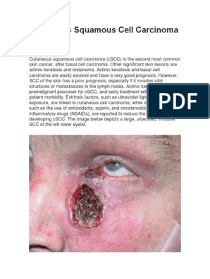 Cutaneous Squamous Cell Carcinoma Skin Cancer Metastasis
