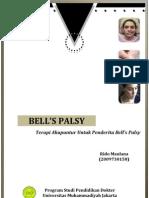 Rido Maulana - Terapi Akupuntur Untuk Bell's Palsy